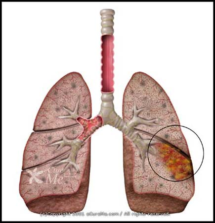 pneumonia research paper