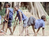 Africa: Advances and setbacks in Polio fight