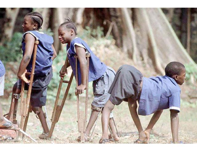 nigerian govt denies new polio claims in cross river - premium, Skeleton