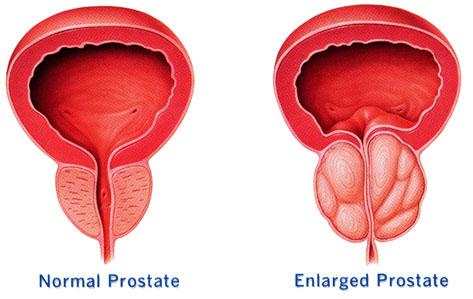 Black men more at risk of prostate cancer than whites – Expert